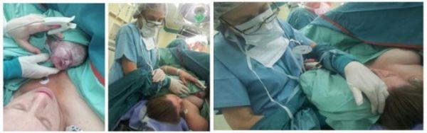 ניתוח קיסרי
